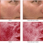 redness in face