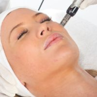 Medical Skin Needling – Why it is the Best Anti-Ageing Secret in the Beauty Industry
