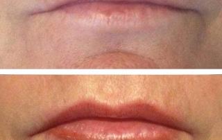 lip tattooing