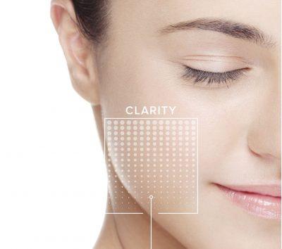 Facial_Peels Vita-Clear Skin
