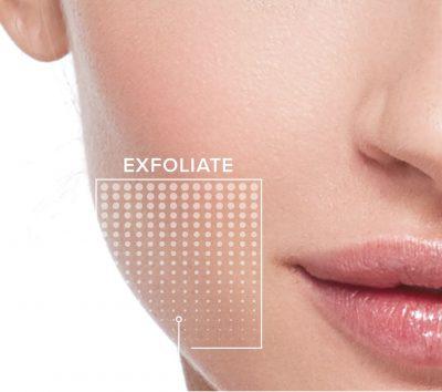 Facial_Peels