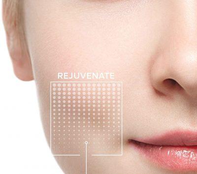 Facial_Peel